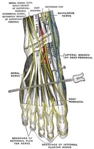 Neuritis image